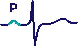 Контурный анализ ЭКГ: анализ сердечного ритма